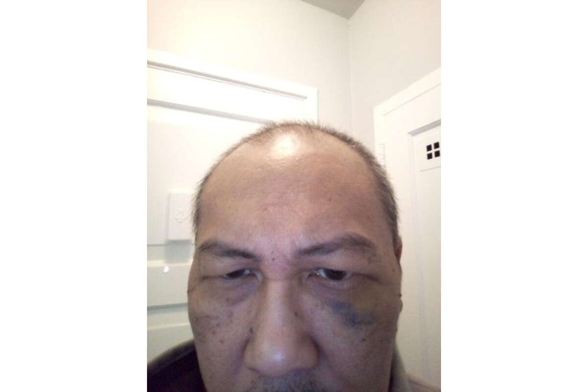 S.F. resident Ron Tuason, 56, shows a black eye he suffered after he said he was attacked near Ingleside on March 13, 2021, by a suspect using racist slurs. The suspect, Victor Brown, has been charged with felony assault and a hate crime.