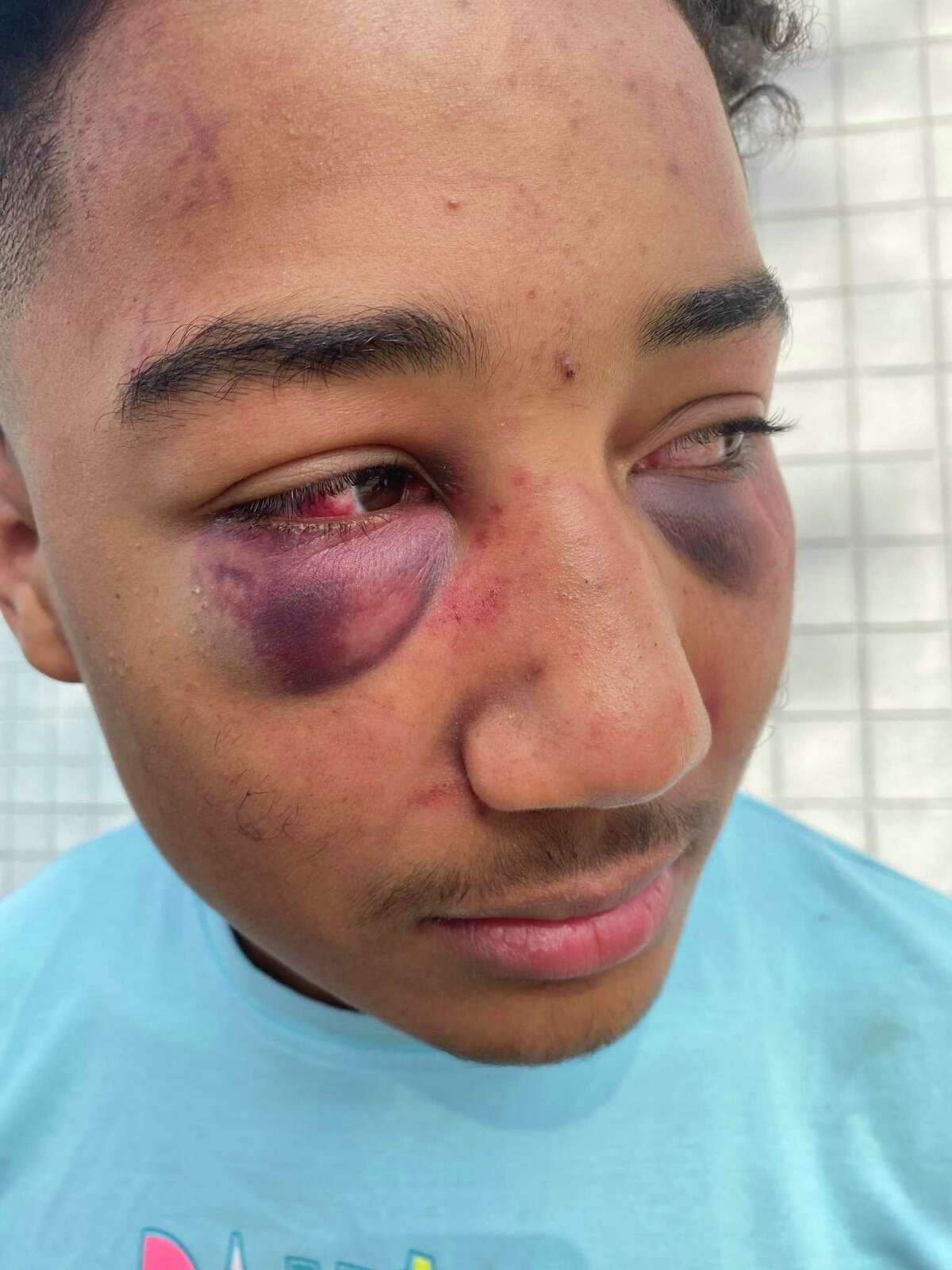 Devin Carter with facial bruises after four Stockton police officers beat him during a traffic stop.