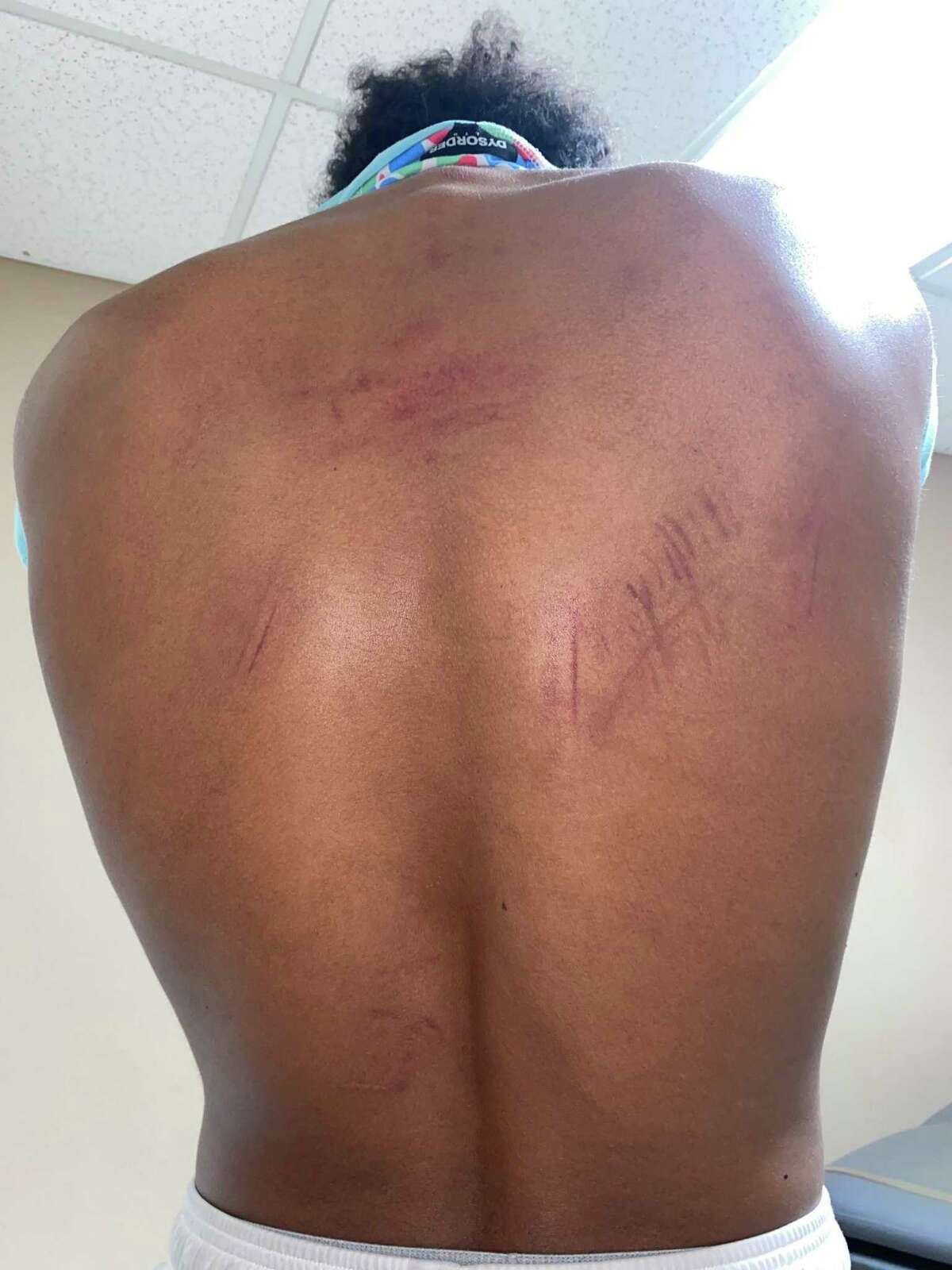 Devin Carter with bruises on his back after four Stockton police officers allegedly beat him during a traffic stop.