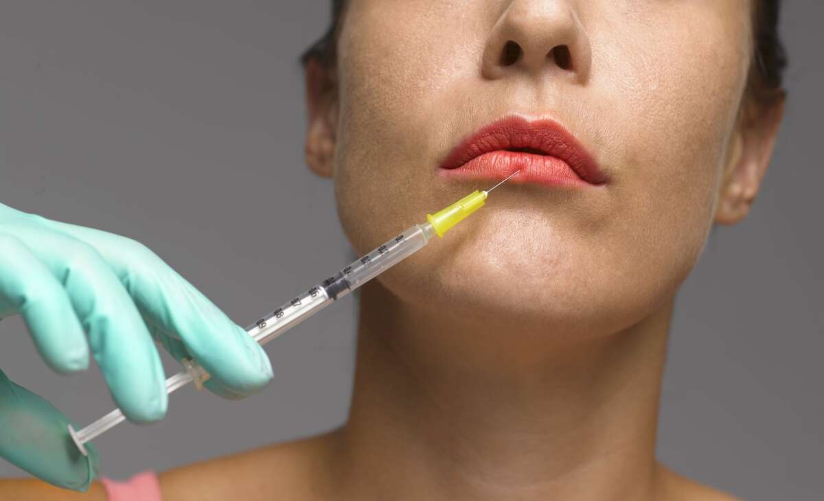Stock image: Lip enhancement being undertaken by plastic surgeon on a woman.