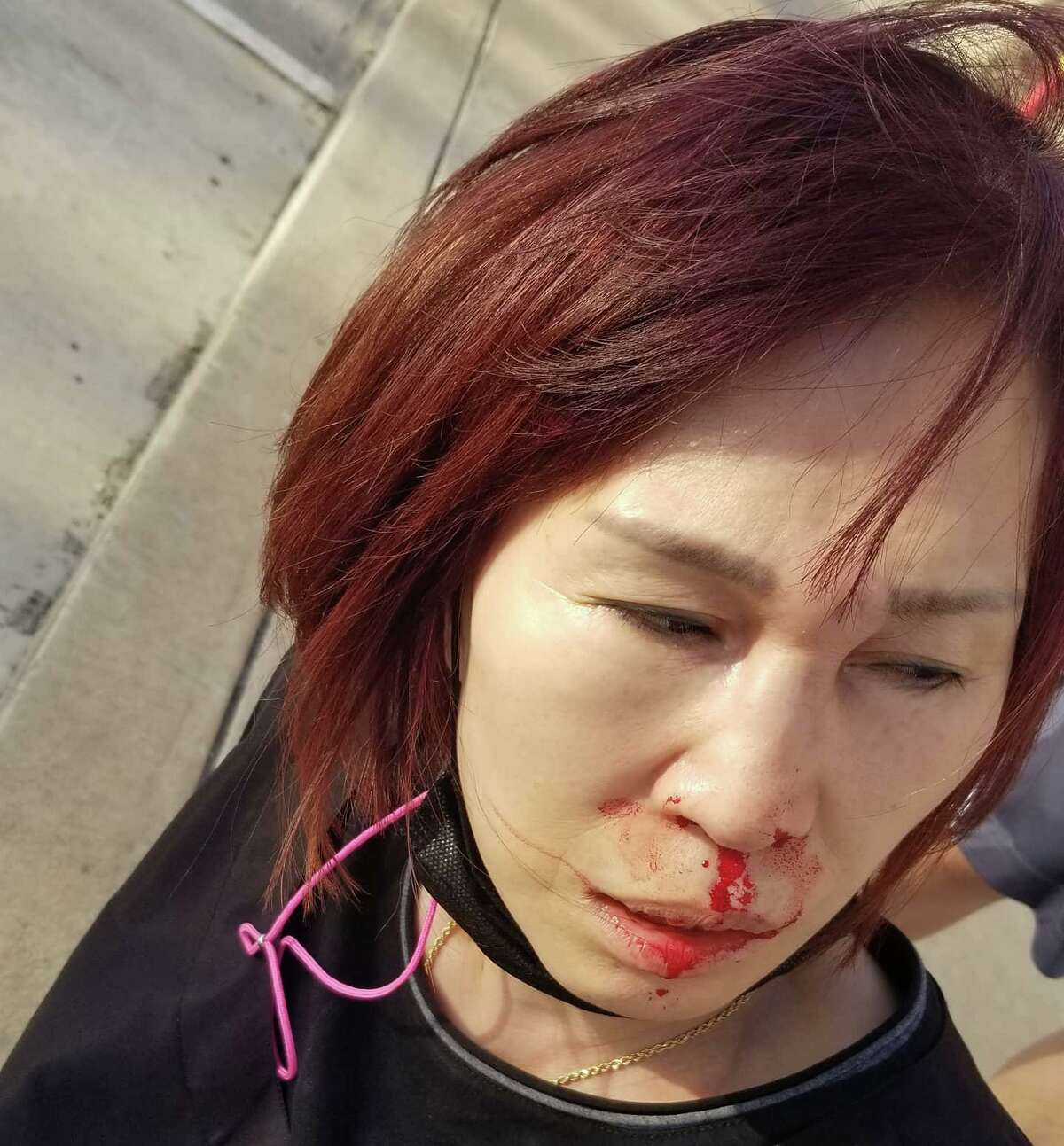 Jung Kim, who owns Uptown Beauty Supply, 12412 Kuykendahl Rd, was injured as customers assaulted the family on March 17 at the store in an unprovoked attack Wednesday, March 24, 2021, in Houston.