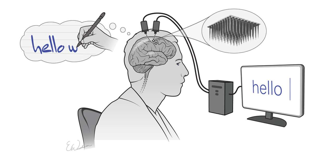 The system uses two implanted electrode arrays that record the brain activity produced by thinking about writing letters. This information is then collected and processed in real time by a computer, which converts that data into words on a screen.