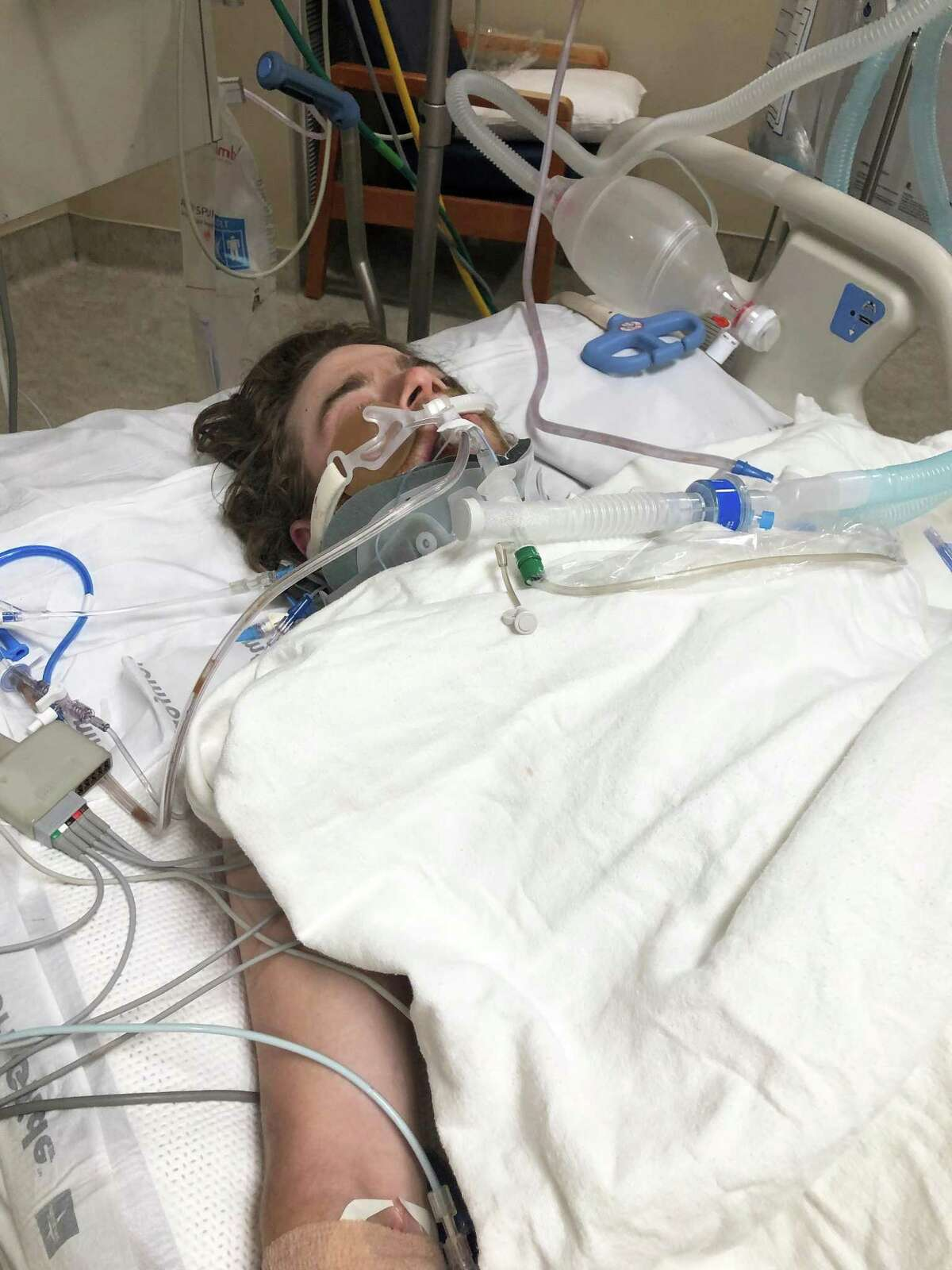 Levi Harris survived a lengthy surgery to repair a tear in one of the main arteries of his heart, a broken sternum in three places, and a collapsed lung after arriving at HCA Houston Healthcare Conroe Regional Hospital on April 12. Harris survived the surgery without bleeding out and left the hospital five days later.