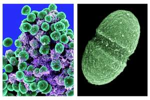 At left, undated handout image provided by the National Institute of Allergy and Infectious Diseases (NIAID) shows a clump of Staphylococcus epidermidis bacteria (green) in the extracellular matrix, which connects cells and tissue, taken with a scanning electron microscope, showing. At right, undated handout image provided by the Agriculture Department showing the bacterium, Enterococcus faecalis, which lives in the human gut, is just one type of microbe that will be studied as part of NIH's Human Microbiome Project. They live on your skin, up your nose, in your gut _ enough bacteria, fungi and other microbes that collected together could weigh, amazingly, a few pounds. Now scientists have mapped just which critters normally live in or on us and where, calculating that healthy people can share their bodies with more than 10,000 species of microbes. (AP Photo/NIAID, Agriculture Department)