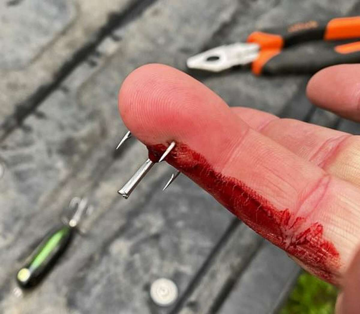 A fish hook dislodged from a largemouth bass penetrated the ring finger of Mike Davis of San Antonio, one of two accidents on the trip involving Heddon Baby Torpedo topwater lures.