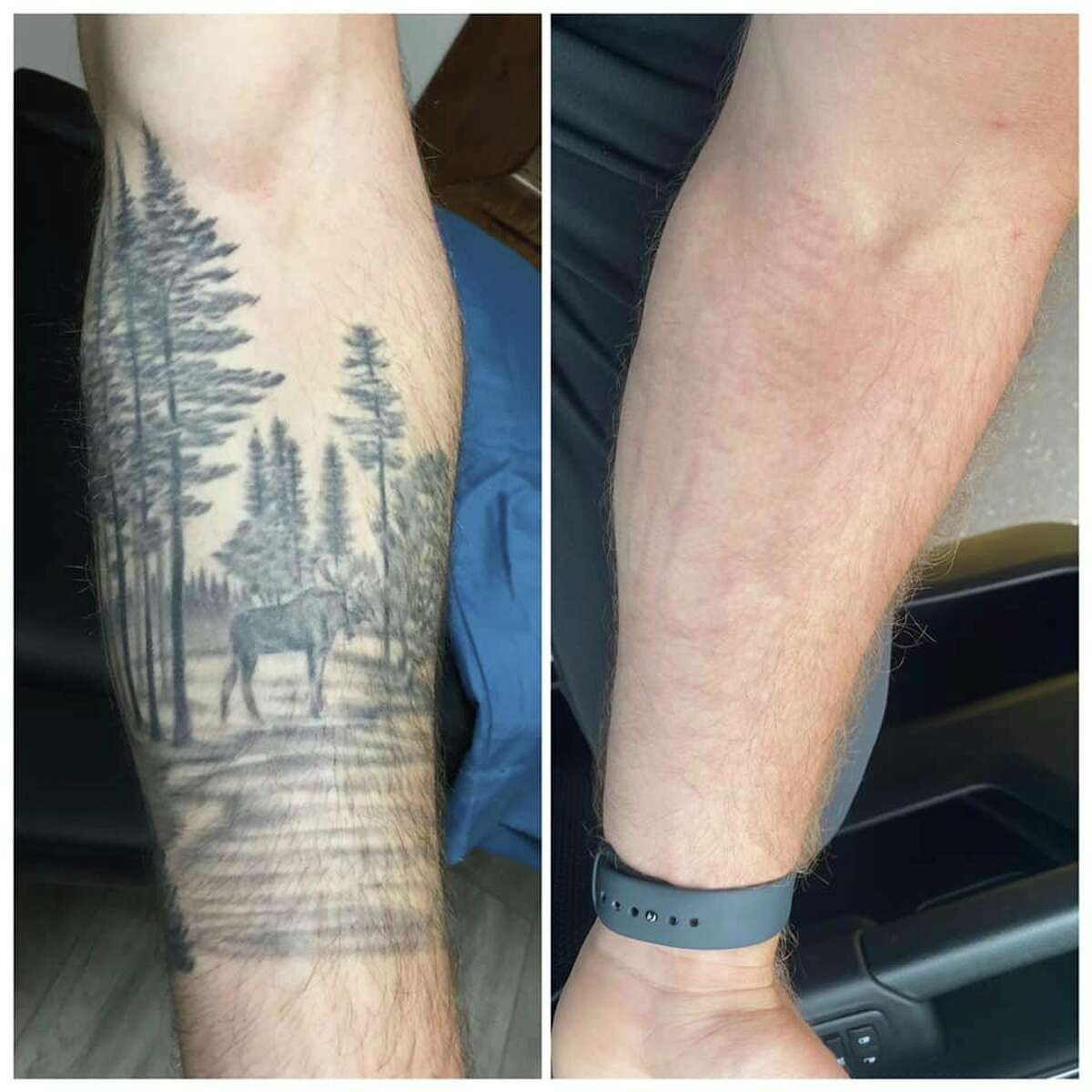 No Regerts Tattoo Removal provides services for completely removing unwanted tattoo ink, fading for cover up tattoos, vascular lesion removal no-obligation, as well as complimentary consultations for all patients. (Courtesy photo)