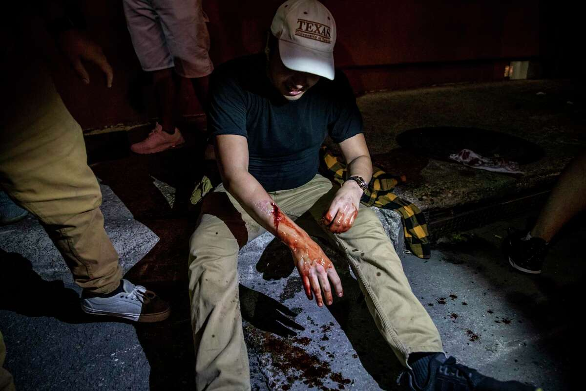 Alex Lance, 23, bleeds after being shot by a non-lethal projectile by San Antonio Police in downtown San Antonio on May 30, 2020. Lance filed a lawsuit against the City of San Antonio and the unidentified police officer, alleging excessive use of force.