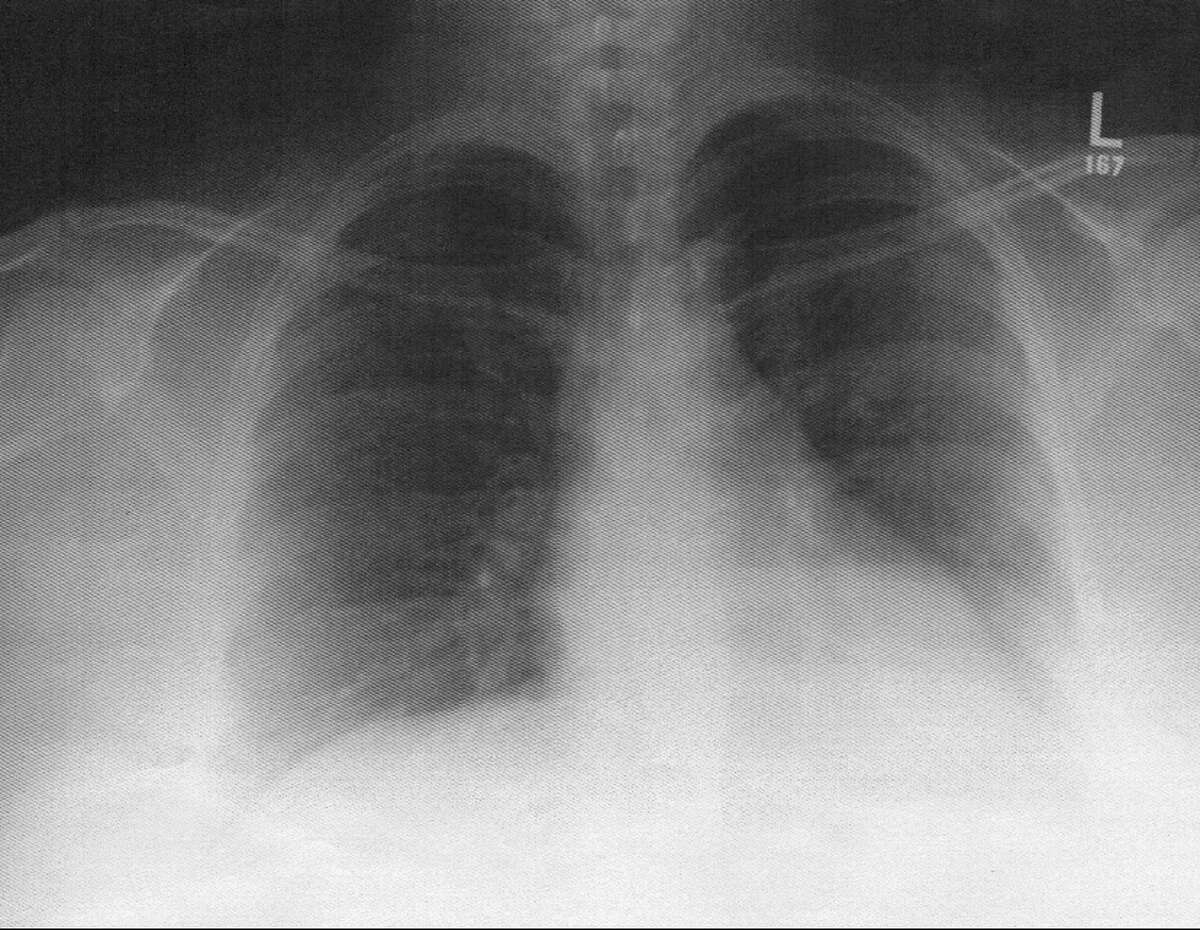 An X-Ray reveals the artist's collapsed lung.