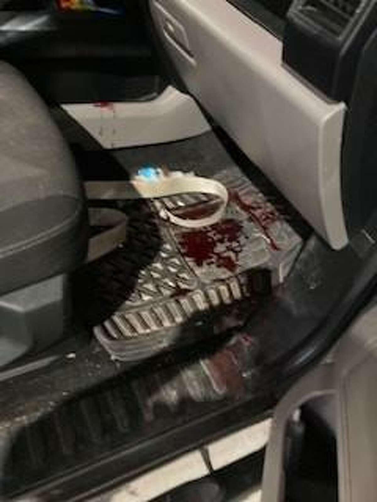 U.S. Border Patrol agents rendered aid to an accidental gunshot victim on Saturday, July 17, 2021.