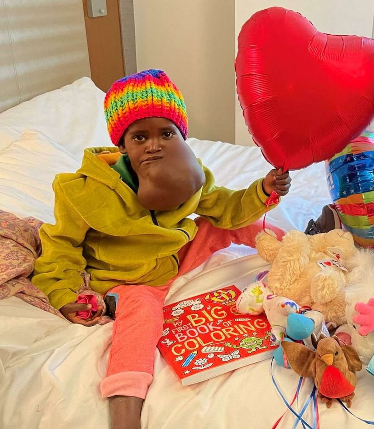 Nagalem Alafa had a venous malformation that was surgically treated in New York City in June of 2021.