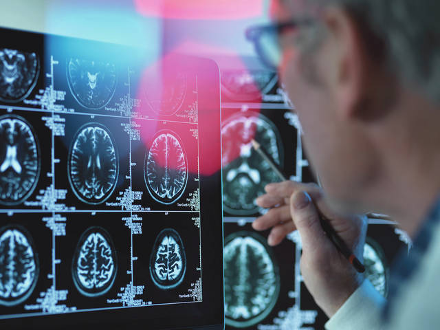 Diabetes and dementia risk getting attention