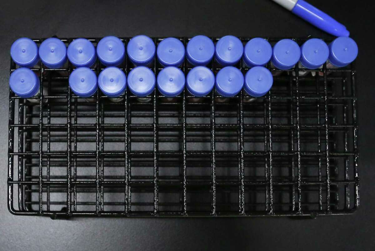 COVID-19 swab samples waiting to be diagnosed at Genview Diagnosis in Houston on Tuesday, Aug. 10, 2021.