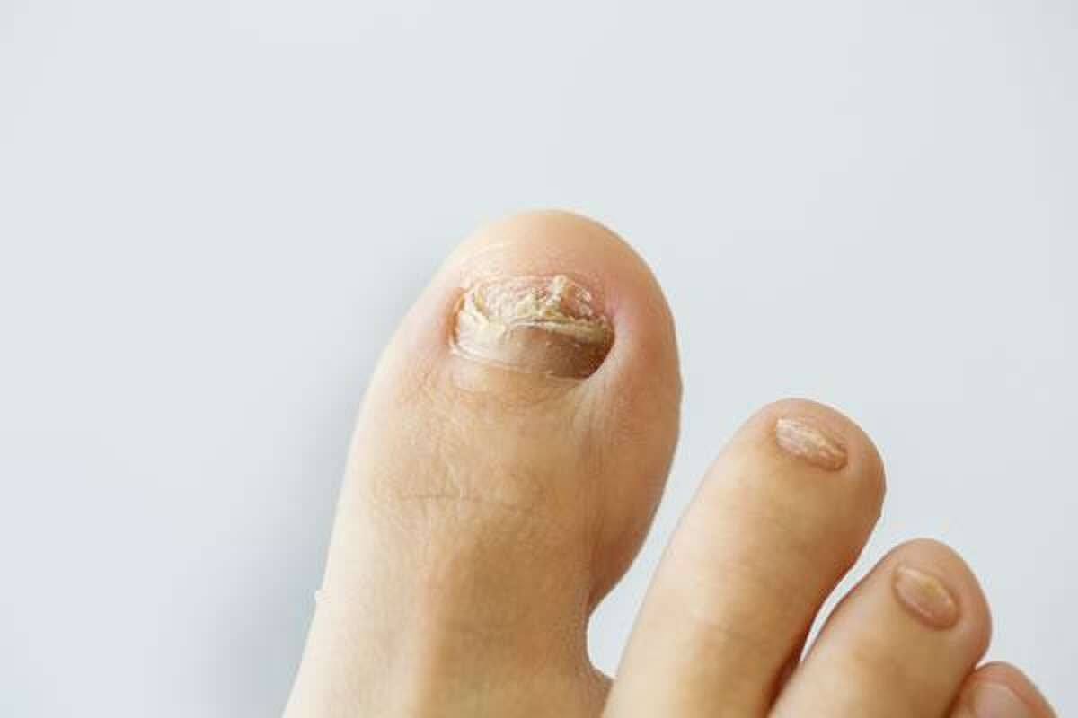 More common on toenails than fingernails, symptoms of nail fungus include yellow or brown nails, or nails that lift up from the nail bed or split or crumble. Without treatment, say dermatologists from the American Academy of Dermatology, nail fungus can worsen and make it painful to wear shoes. Photo courtesy of the American Academy of Dermatology.
