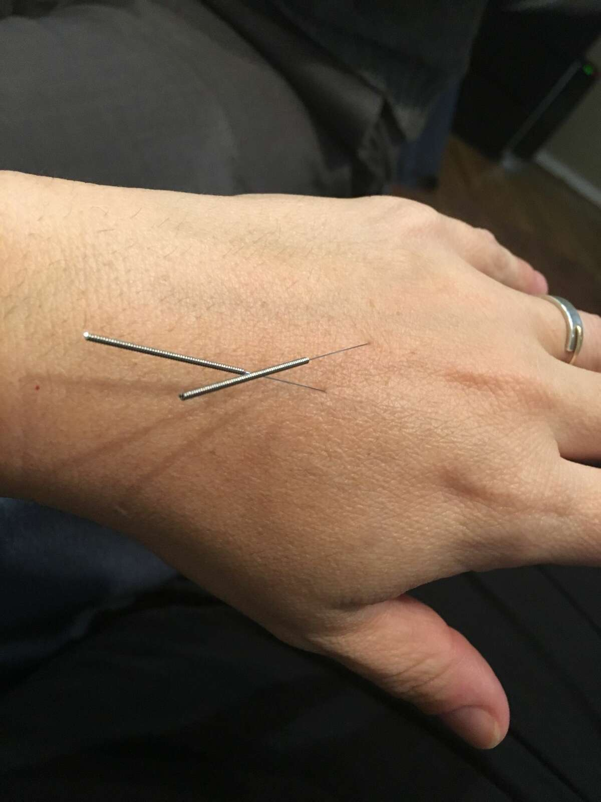 Elm City Wellness in New Haven offers acupuncture treatments.