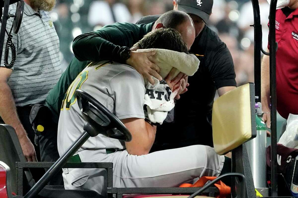 Oakland Athletics starting pitcher Chris Bassitt is attended to as he leaves the filed after getting hit in the head by a ball hit by Chicago White Sox's Brian Goodwin during the second inning of a baseball game Tuesday, Aug. 17, 2021, in Chicago. (AP Photo/Charles Rex Arbogast)