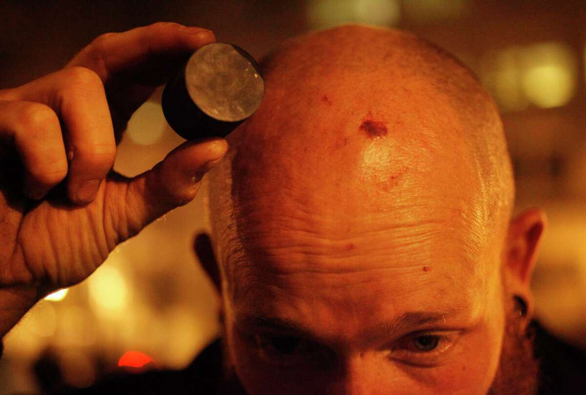 A protester shows the rubber bullet he thinks police used that gave him the welt on his head, on Nov. 24, 2014 in Oakland, Calif.