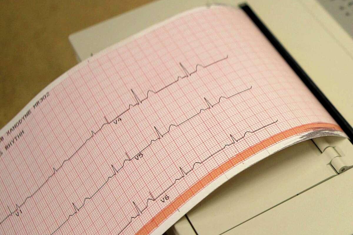 An electrocardiogram machine
