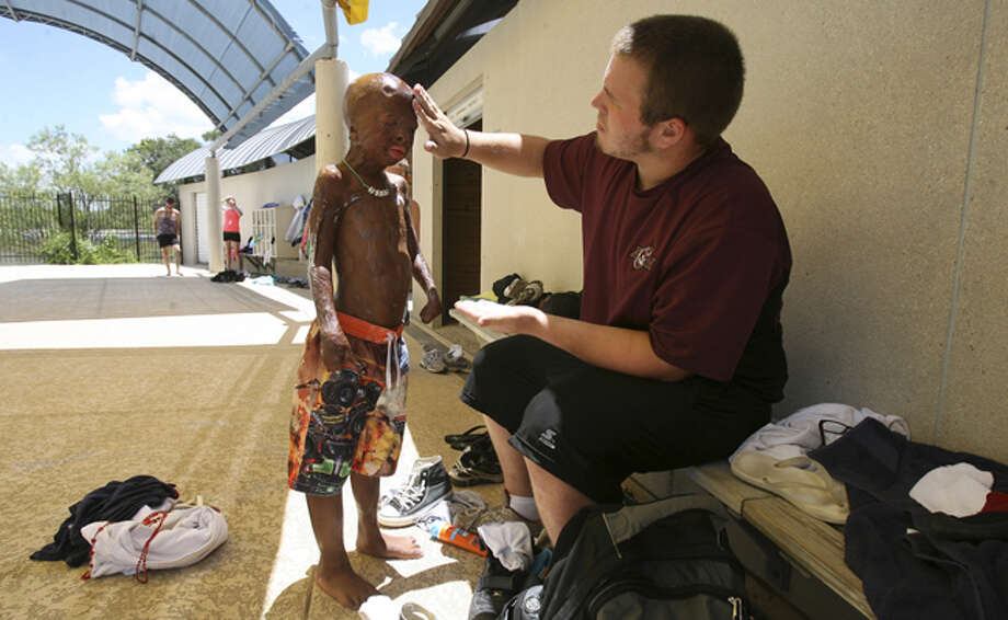Camp counselor Colton Koenig applies sunblock to Sean Bigelow, 9, at Texas Lions Camp near Kerrville, where the Texas Burn Survivor Society sponsors a weeklong camp for young burn survivors and their families.
