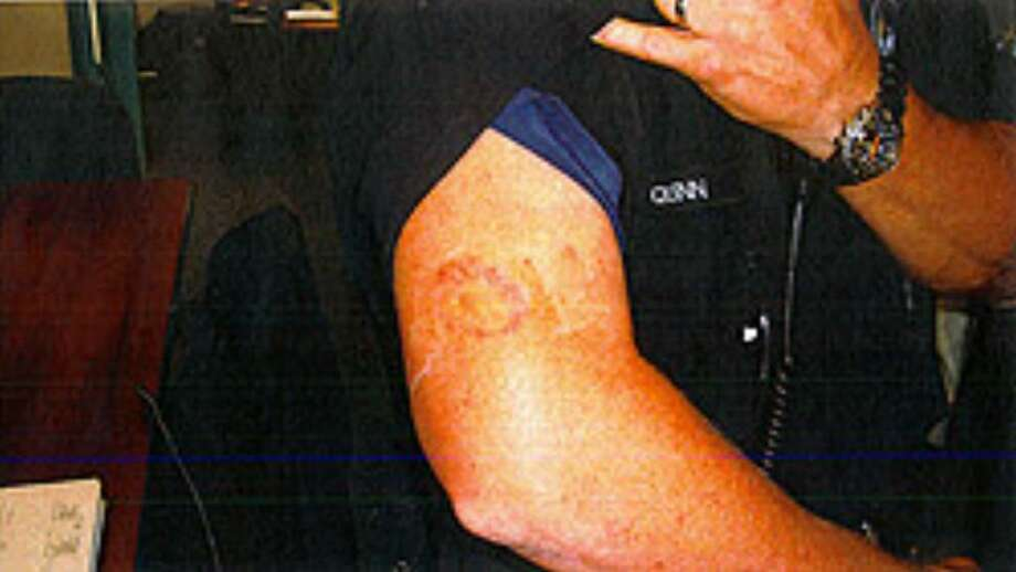 A picture of the alleged bite, from a court filing. Photo: / Mercer Island Police Department