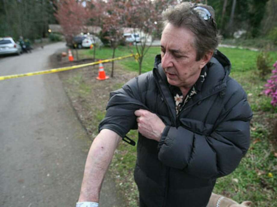 Steve Sarich, a medical marijuana advocate, was shot and wounded Monday morning inside a Kirkland home during an attempted robbery. Sarich, who was hit in the arm and face, shows off his wounds. Photo: Thom Weinstein/seattlepi.com