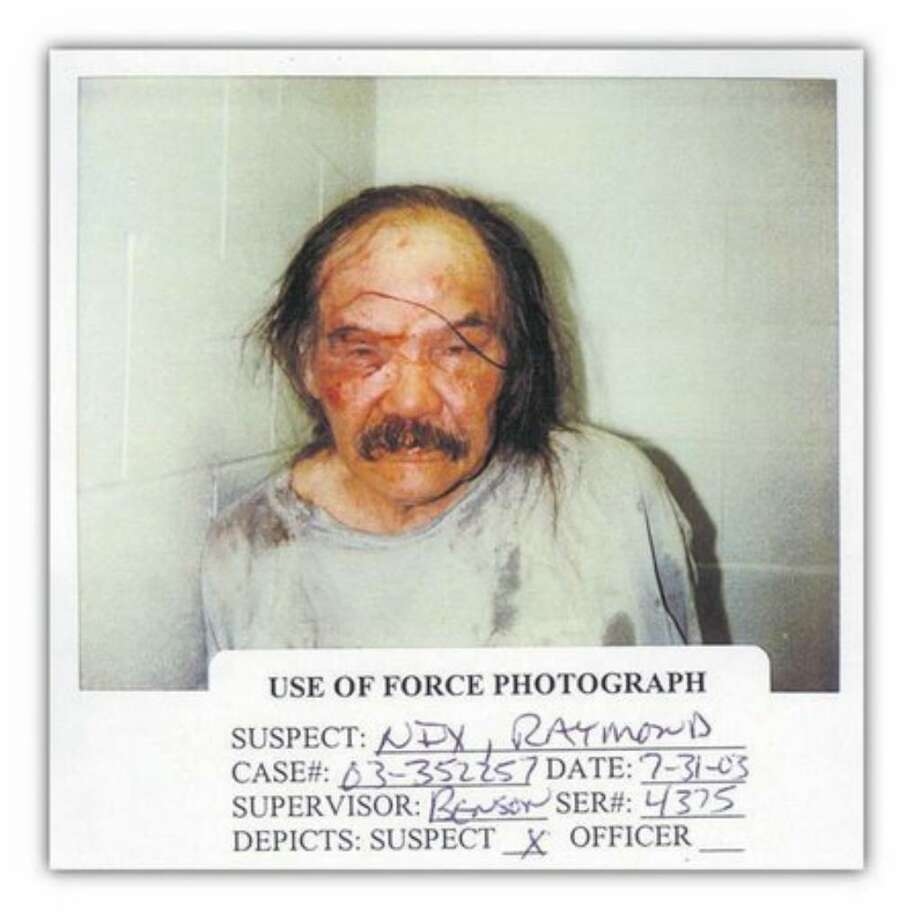 Raymond Nix shown after being beaten by Seattle Police Officer Zsolt Dornay Jr. and at least one other officer during a July 31, 2003 incident. Photo: /