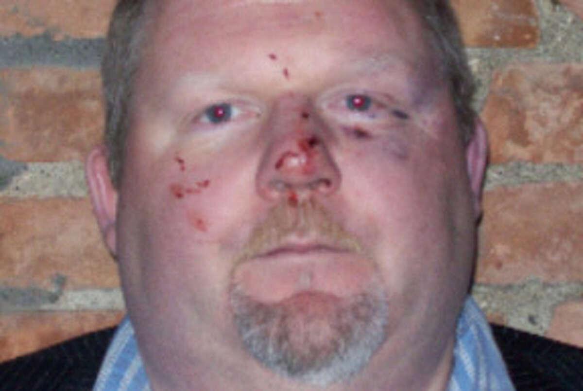 Times Union Senior Writer Steve Barnes after being beaten Fri., Oct. 17, 2008.