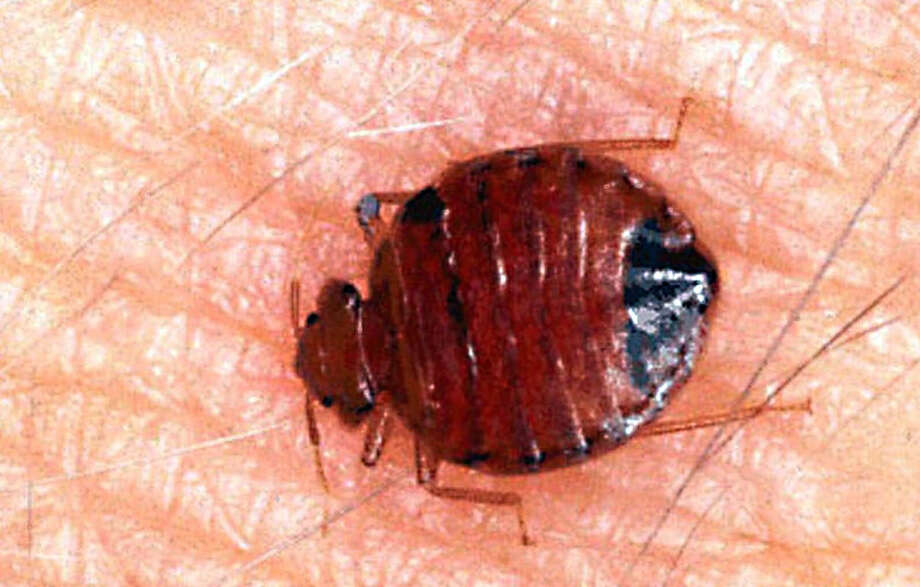 An up-close look at a bed bug. Photo: Associated Press