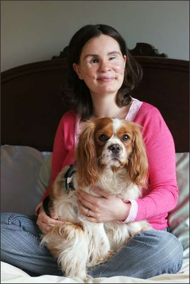 "Maria Federici, with Sammy Two Shoes, her Cavalier King Charles Spaniel, was blinded and nearly killed two years ago when a piece of wood flew off a truck and smashed into the windshield of her car. She is planning to marry a man she met through a counselor. She considers herself ""pretty much normal."" Photo: Meryl Schenker/Seattle Post-Intelligencer"