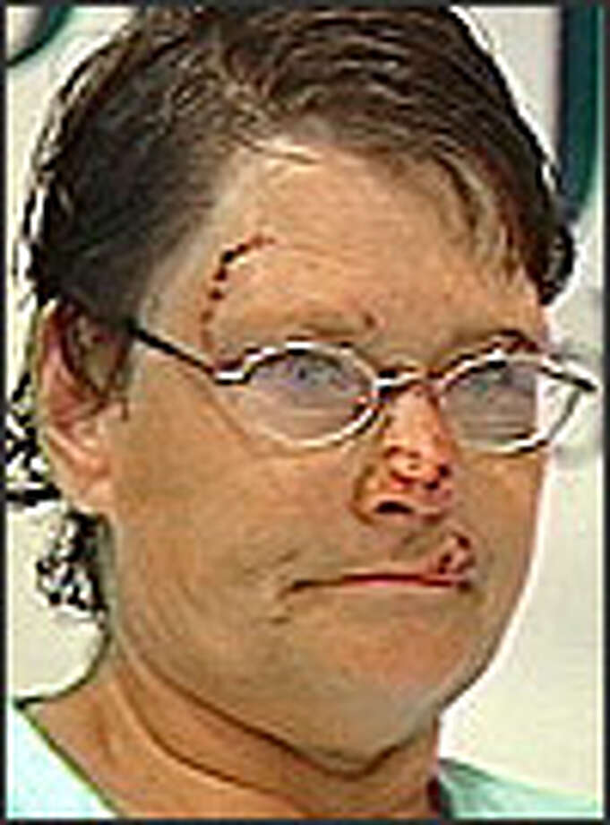 On Wednesday, a stitched and bandaged Sue Ann Gorman talks about her escape from a pair of pit bulls that mauled her in her home.