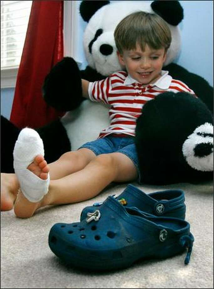 Rory McDermott's Croc-clad left foot was caught in an escalator in August. The 4-year-old shows his injured foot at his home in Vienna, Va. The nail on his big toe was almost totally ripped off. Crocs and other soft-soled types of shoes can be prone to escalator entrapment because of their flexibility and grip, according to reports from the U.S. and elsewhere. Photo: / Associated Press
