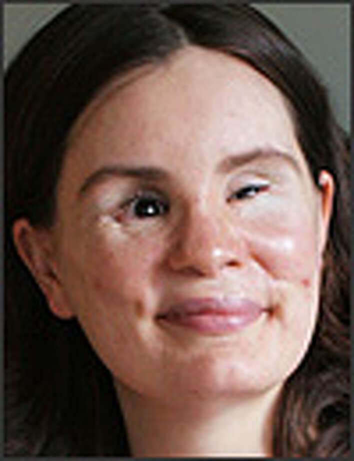 Maria Federici was blinded in 2004 in a wreck on I-405.