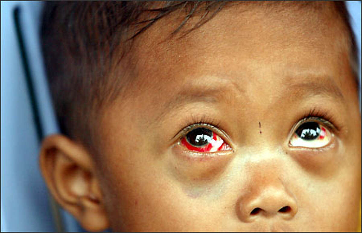 The bloodshot eyes of this young Cambodian boy afflicted with whooping cough are red flags for those trying to expand immunization coverage in the country.