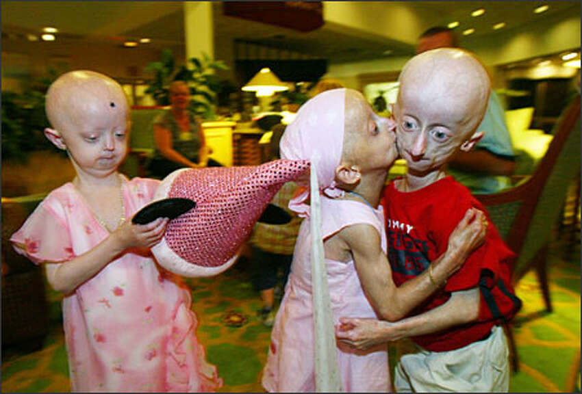 On the last night of the Sunshine Foundation's annual progeria reunion, Seth Cook gets a goodbye kiss from his friend, 9-year-old Michaela McAvoy of Northampton, England. On the left is Hayley Okines, 6, also of England. The children know they might not see each other next year. Seth's best friend with progeria died in March.