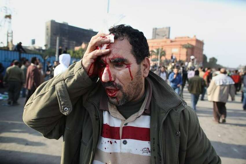 An anti-government protester holds a cloth to his head injury after clashes with supporters of President Mubarak in Tahrir Square on Wednesday in Cairo, Egypt. Anti-government protesters continue to occupy Tahrir Square in downtown Cairo after President Mubarak announced that he would not run for another term in office but stay in power until elections later this year.
