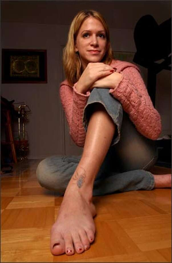 Alexandra Baker, 23, displays the remains of a spider tattoo that she is having removed. The tattoo was inked on in college, one of seven on her body. Now that Baker is in the working world, her feelings toward tattoos have changed and she is having three of them removed. (AP Photo/Jim McKnight) Photo: Associated Press / Associated Press