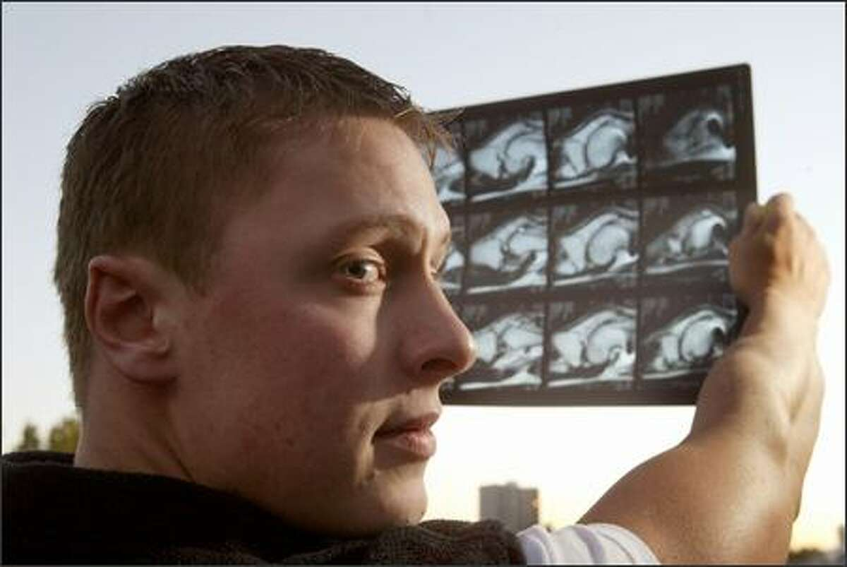 Ian Anderson, 23, of Spokane, a former Marine who was shot five times while performing a reconnaissance mission in Iraq, holds an MRI of his injured knee. He has been forced to go on welfare to take care of his family while he is battling with the military over his injury settlement.
