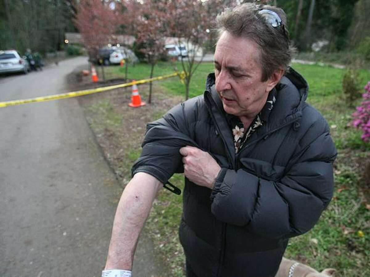 Steve Sarich, a medical marijuana advocate, was shot and wounded Monday morning inside his Kirkland home during an attempted robbery. Sarich shows off his wounds where he was shot in the arm and face.