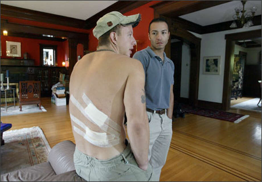 Micah Painter's wounds, still healing yesterday, were inflicted when three men stabbed and beat him outside of a Capitol Hill club last month for being gay. With him is partner Donny Gallegos. Many in the gay community took the assault as a personal attack on all of them. Photo: Scott Eklund, Seattle Post-Intelligencer / Seattle Post-Intelligencer