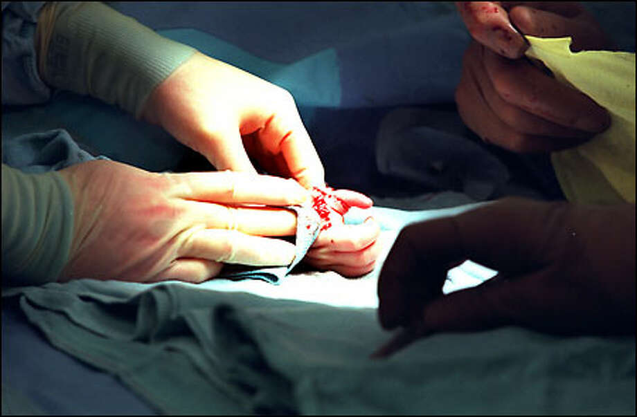 At the end of hours of surgery, doctors prepare to put a cast on Cort Sawaya's right hand, which now sports a thumb and three fingers. Photo: Gilbert W. Arias, Seattle Post-Intelligencer / Seattle Post-Intelligencer