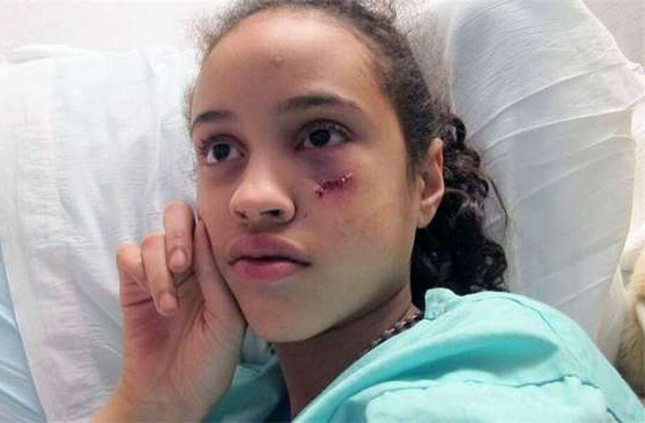 Jomaira Rodriguez of Schenectady was visiting relatives in Rochester with her family when she was shot. The 11-year-old girl who was shot in the face on Wednesday, April 21, 2011, and is recovering at Strong Memorial Hospital in Rochester. (Courtesy Rochester Democrat and Chronicle)