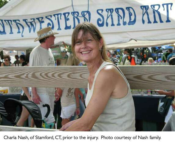 Charla Nash of Stamford, CT, prior to the accident Photo: Contributed / Connecticut Post Contributed