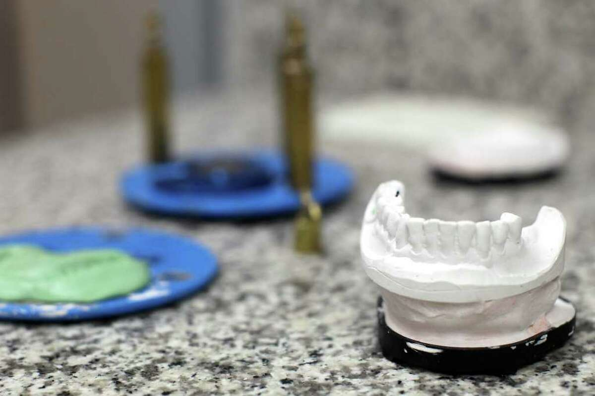 Plaster of paris models of teeth were created from the 3D images.