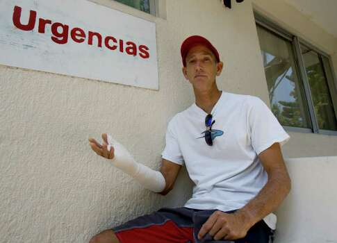 Bruce Grimes, an American expat who runs a local surf shop, shows his injured arm as he poses for a picture at the hospital in Ixtapa, along Mexico's Pacific Coast, Tuesday, May 27, 2008. Sharks have attacked three surfers in the area in less than a month, two fatally. Grimes was the latest attack victim on May 24, 2008, along Playa Linda, Ixtapa, when a shark bit his arm. Photo: Eduardo Verdugo, AP / AP
