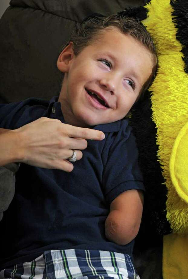 James Deere, 4, laughs in his home in Waterford, N.Y. on Thursday, July 14, 2011. James was 3 when he came down with a septic infection, lost a leg and arm and suffered brain damage. (Lori Van Buren / Times Union) Photo: Lori Van Buren