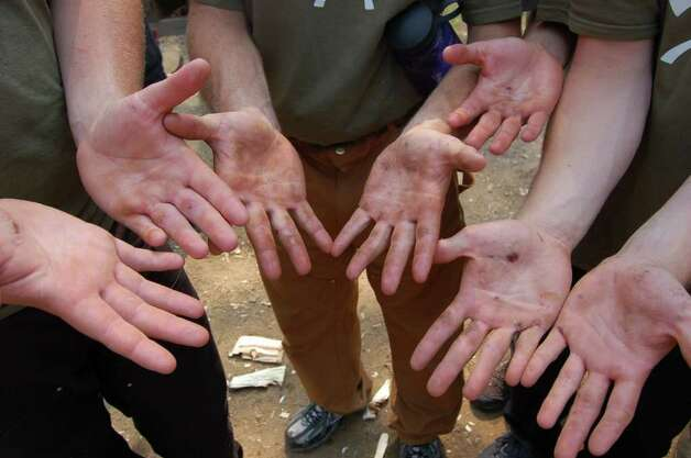 Students show off their calluses and hands on Tuesday July 19, 2011. They are participants in the Adirondack Woodsmen's School at Paul Smith's College.  (Scott Waldman / Times Union) Photo: Scott Waldman