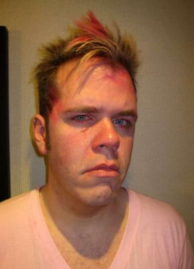 In this image released by Perez Hilton, the celebrity blogger is shown with an injury beneath his eye. Hilton, whose name is real is Mario Lavandeira, says he got into argument with Fergie and will.i.am of the Black Eyed Peas at a Toronto nightclub early Monday and was punched outside the club by Polo Molina, the band's manager. Photo: Associated Press