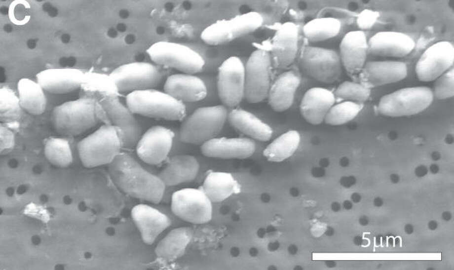 A micrograph shows an enlarged view of the bacteria strain GFAJ-1, which grows using arsenic instead of phosphorus. Photo: Science / AAAS Via Bloomberg