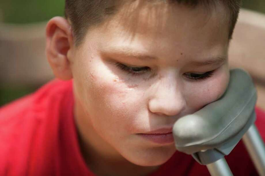 Mario Lopez, 10, shows his injuries and talks about being attacked by two dogs Friday, July 22, 2011, in Liberty County. Lopez was riding his bike on June 30th, 2011,  when the two dogs attacked him and he tried fighting them off with his bike, a stick and legs. He lost chunks of flesh on his arm and legs and had to have his ear and nipple re attached. ( Nick de la Torre / Houston Chronicle ) Photo: Nick De La Torre, Staff / © 2010 Houston Chronicle