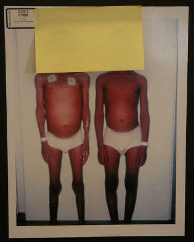 Evidence photos show the emaciated condition of the two brothers. Photo: BOB LEVEY, FOR THE CHRONICLE