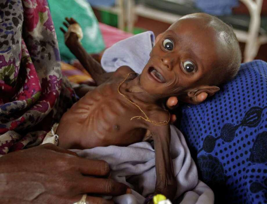 """Mihag Gedi Farah, a seven-month-old child with a weight of 3.4kg,  is held by his mother in a field hospital of the International Rescue Committee, IRC, in the town of  Dadaab, Kenya, Tuesday, July 26, 2011. The U.N. will airlift emergency rations this week to parts of drought-ravaged Somalia that militants banned it from more than two years ago, in a crisis intervention to keep hungry refugees from dying along what an official calls the """"roads of death."""" Tens of thousands already have trekked to neighboring Kenya and Ethiopia, hoping to get aid in refugee camps.(AP Photo/Schalk van Zuydam) Photo: Schalk Van Zuydam / AP"""
